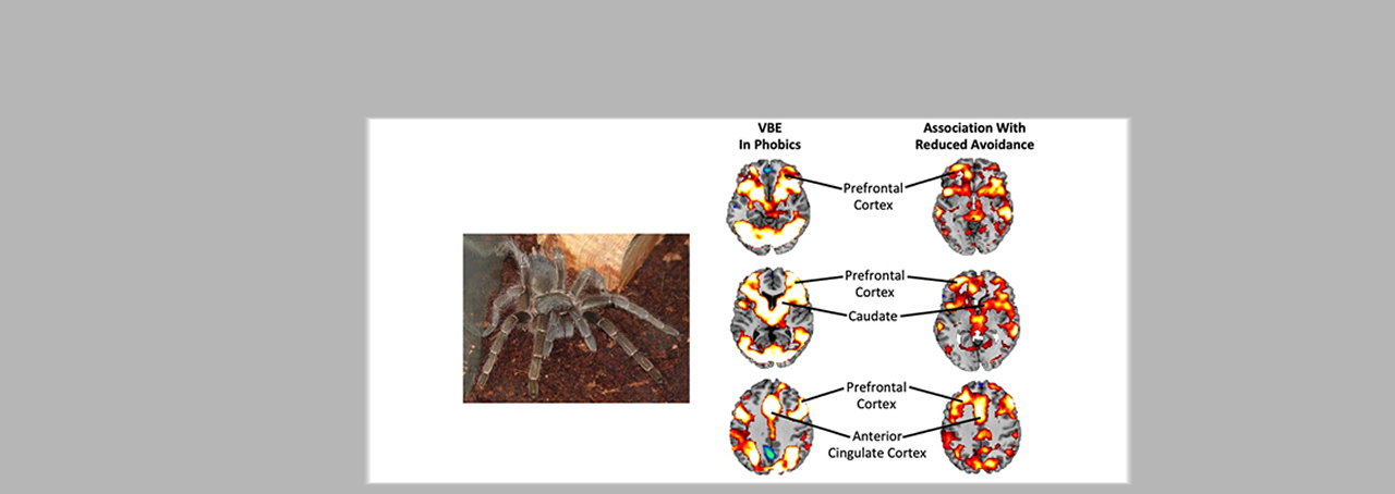 functional magnetic resonance image from double-blind placebo controlled experiment focused on arachnophobia by Dr. Paul Siegel from Purchase College published in The Lancet Psychiatry